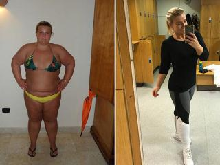 Carli-wls-before-after-3